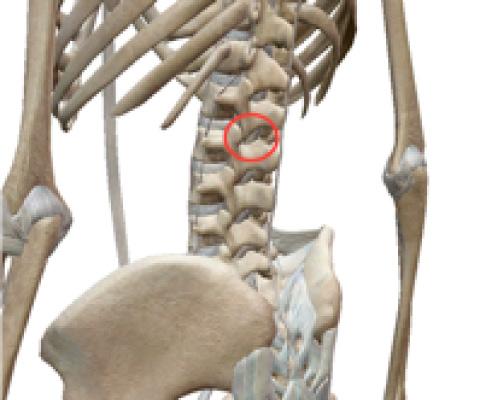 ②椎間関節